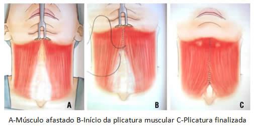 img_cervicoplastia03