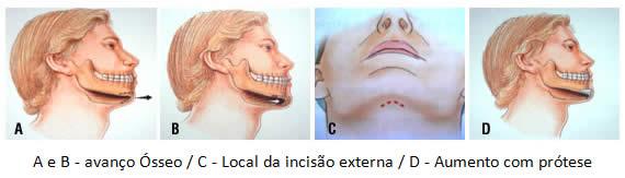 img_lipofacialmentoplastia02