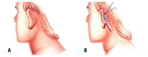 img_lipofacialotoplastia02
