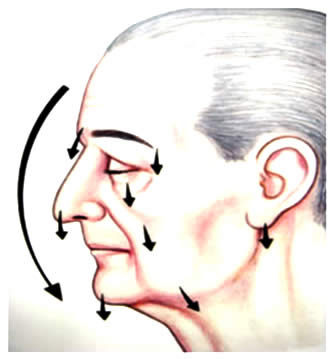 img_lipofacialritidoplastia01
